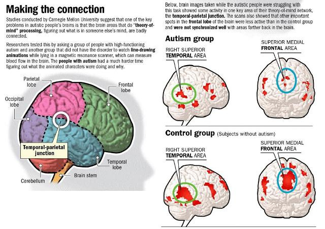 Treating Autism As Problem Connection >> Neurotherapy Treatment Of Autism And Autistic Spectrum Disorders At